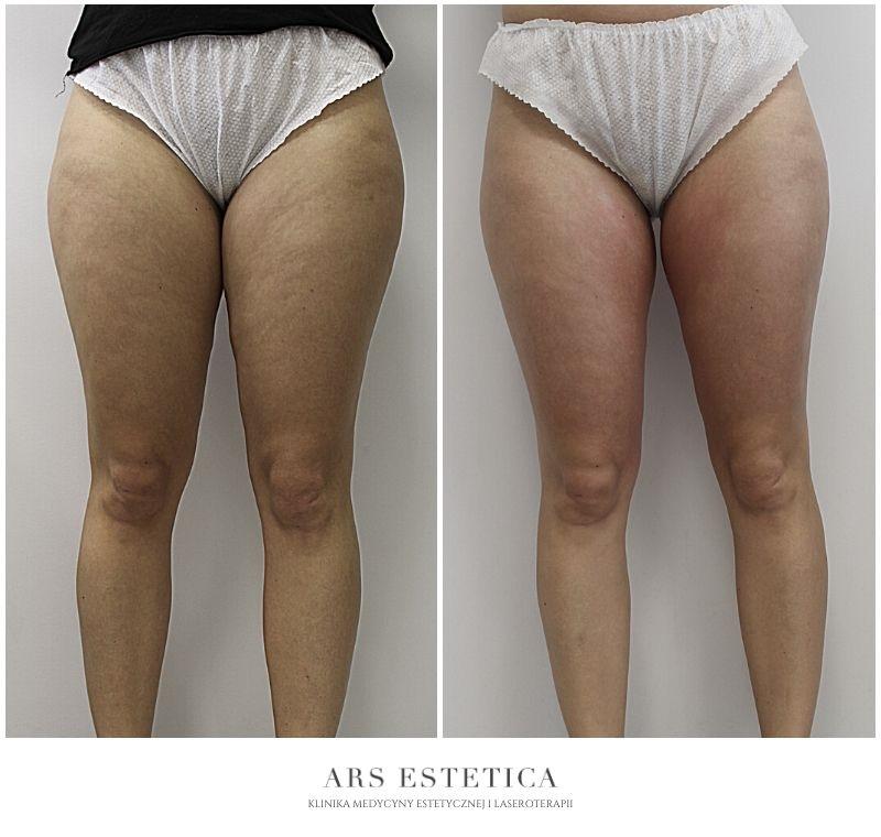 liposhock zdjęcia przed i po 3