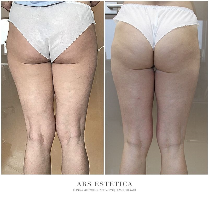 liposhock zdjęcia przed i po 4