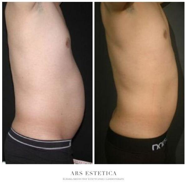 ultrashape przed i po