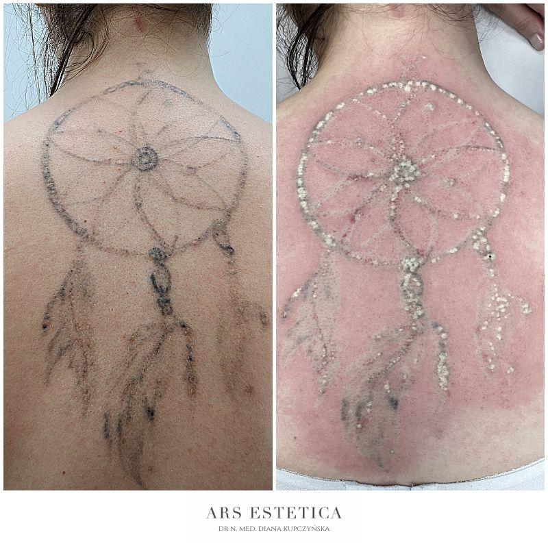 usuwanie tatuażu zdjęcia
