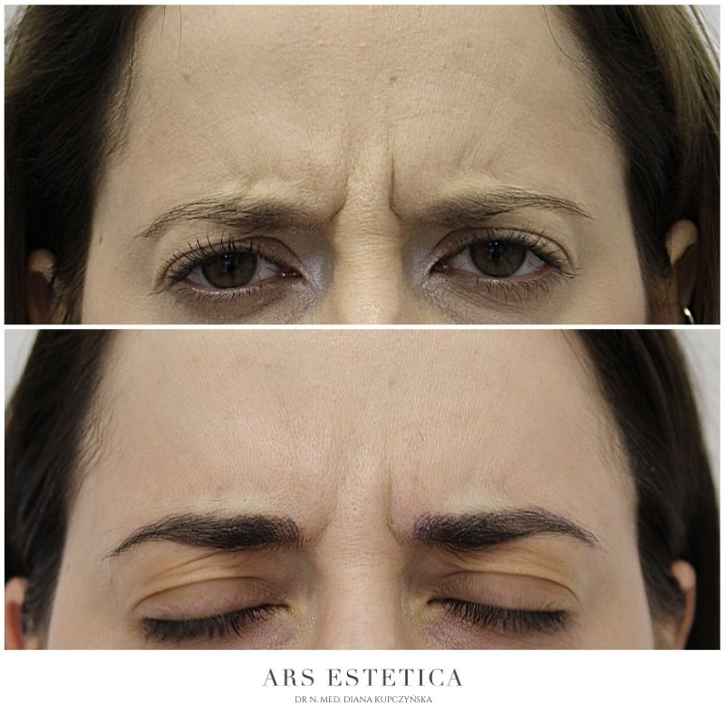 botox przed i po (1)