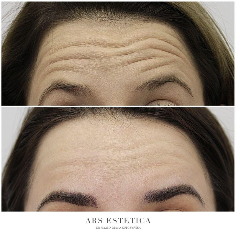 botox przed i po