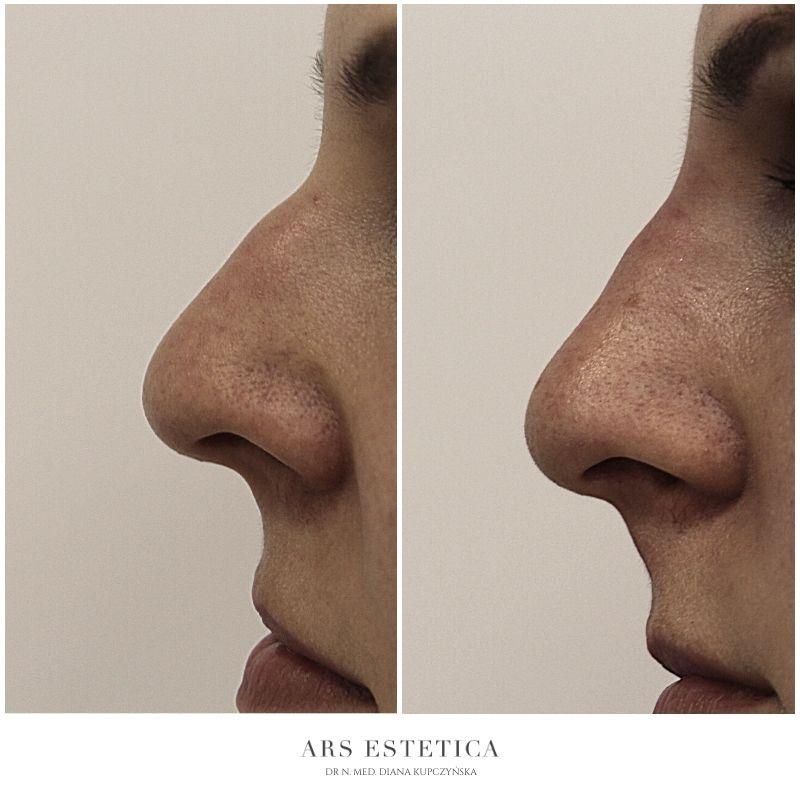 korekta nosa kwasem hialuronowym (1)