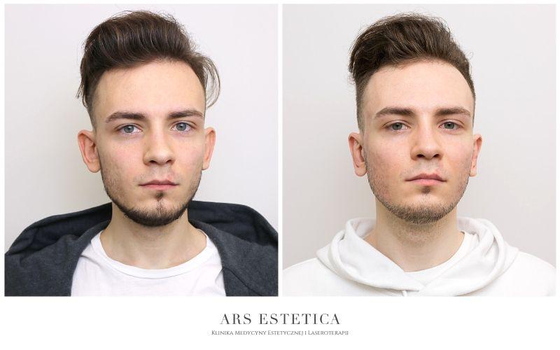 korekta uszu przed i po 1