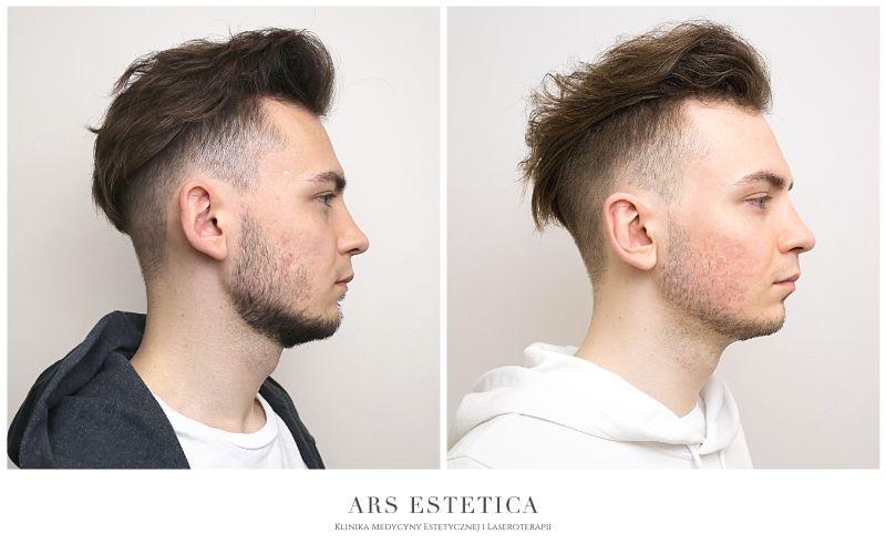 korekta uszu przed i po 2