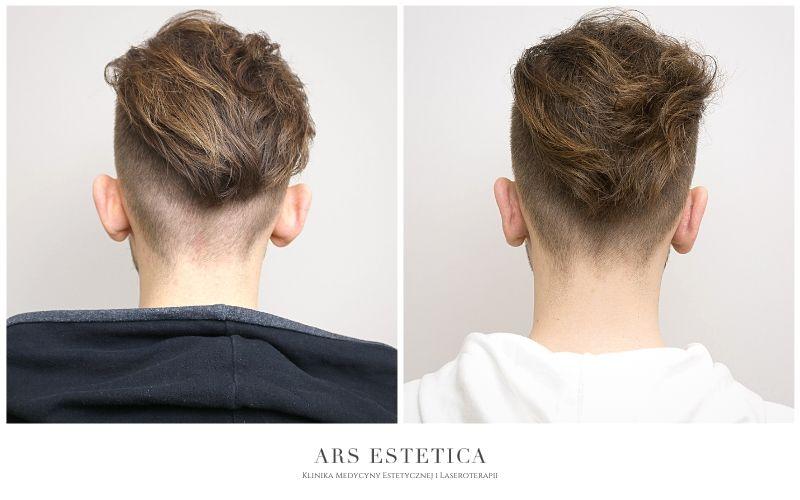 korekta uszu przed i po 3