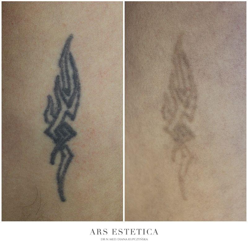 laserowe usuwanie tatuażu (1)