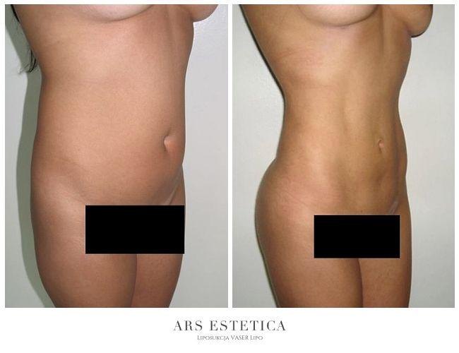 liposukcja zdjęcia przed i po 1
