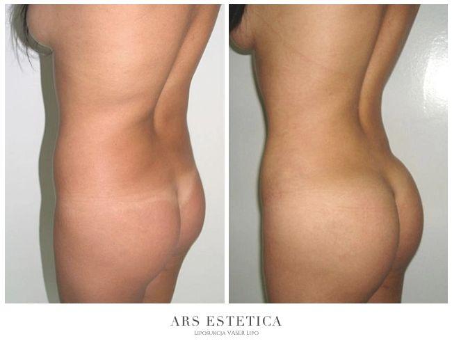 liposukcja zdjęcia przed i po 2