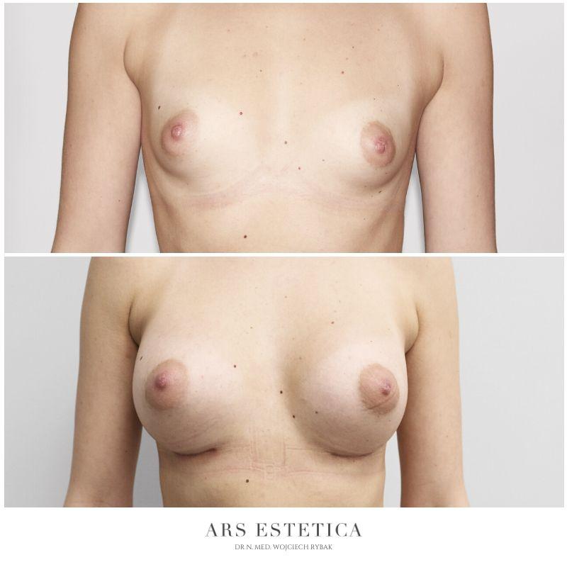 powiększanie piersi zdjęcia przed i po 1