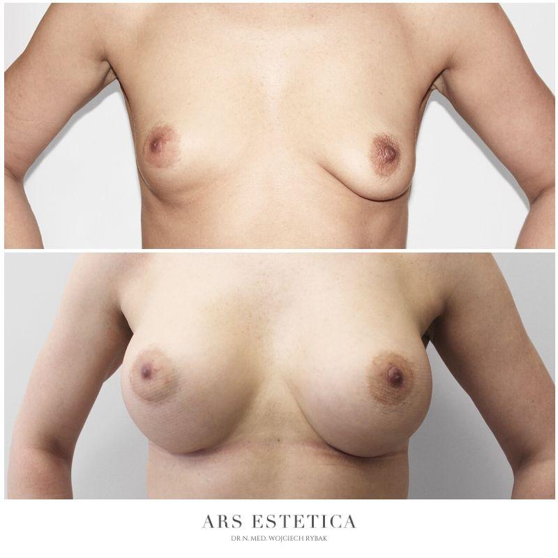 powiększanie piersi zdjęcia przed i po 3