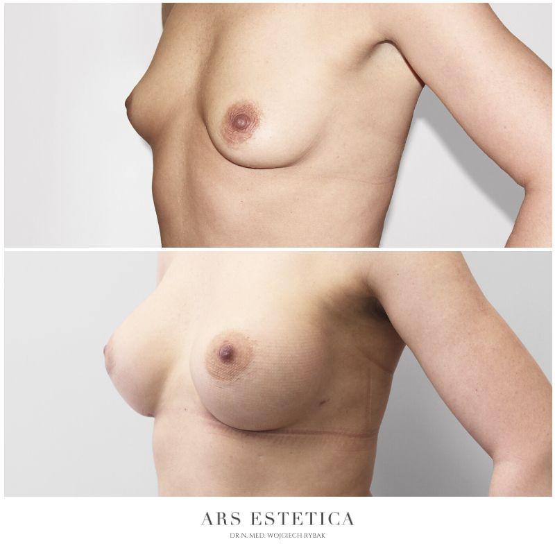 powiększanie piersi zdjęcia przed i po 4