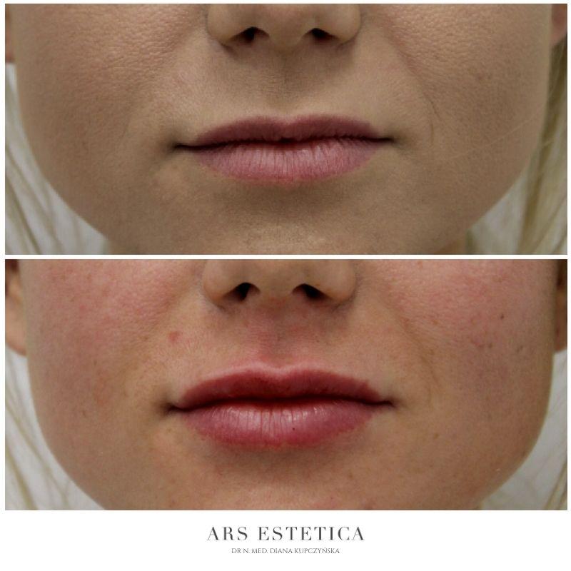 powiększanie ust przed i po 1