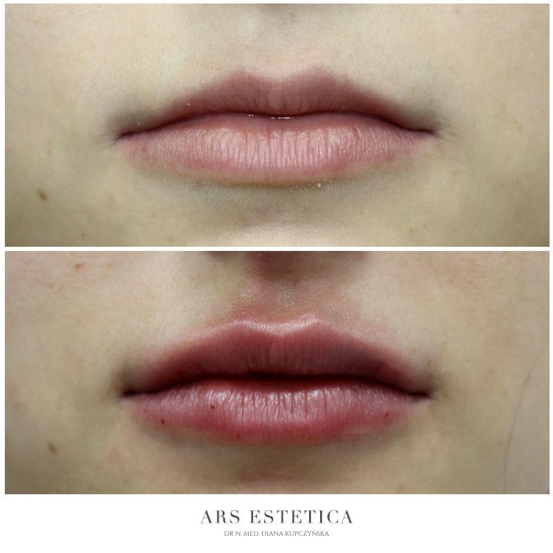 powiększanie ust przed i po 2