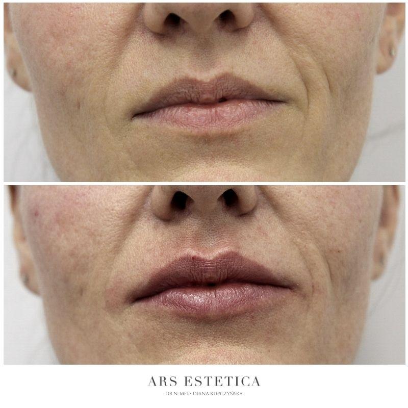 powiększanie ust przed i po 3