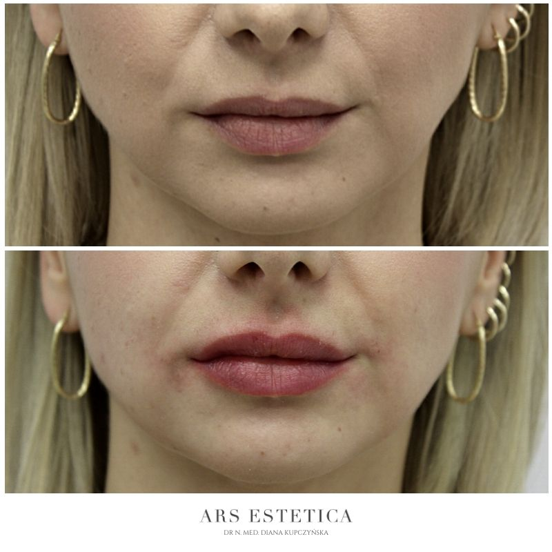 powiększanie ust przed i po 4