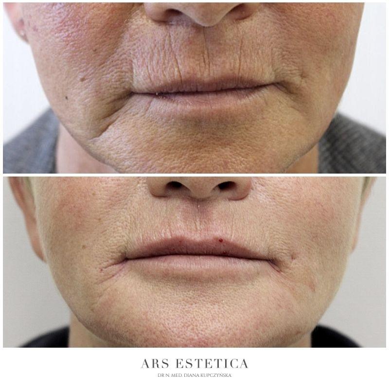 powiększanie ust przed i po 5