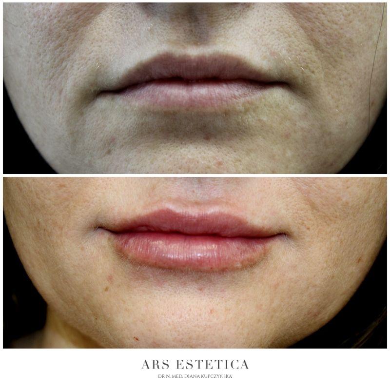 powiększanie ust przed i po 7