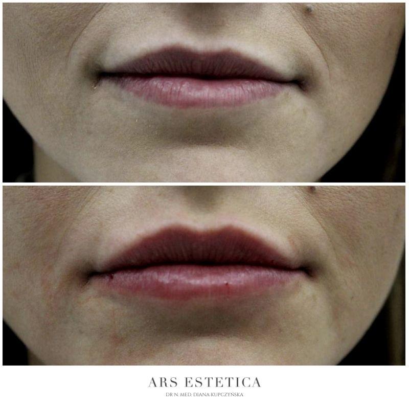 powiększanie ust przed i po 8