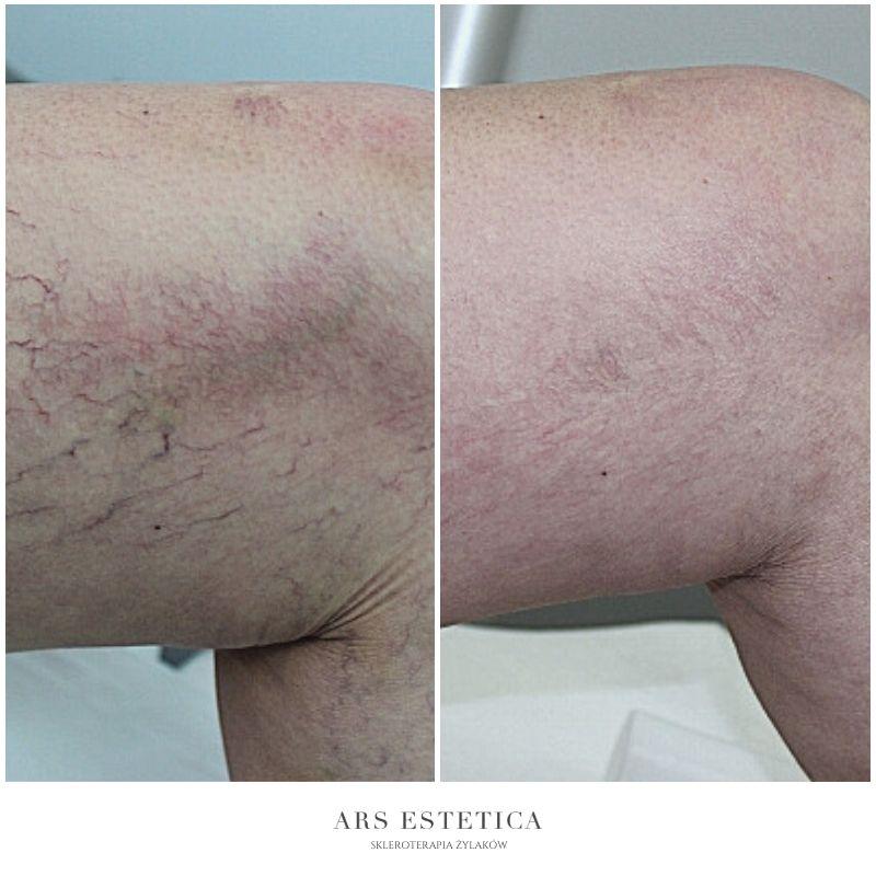 skleroterapia zdjęcia przed i po 1