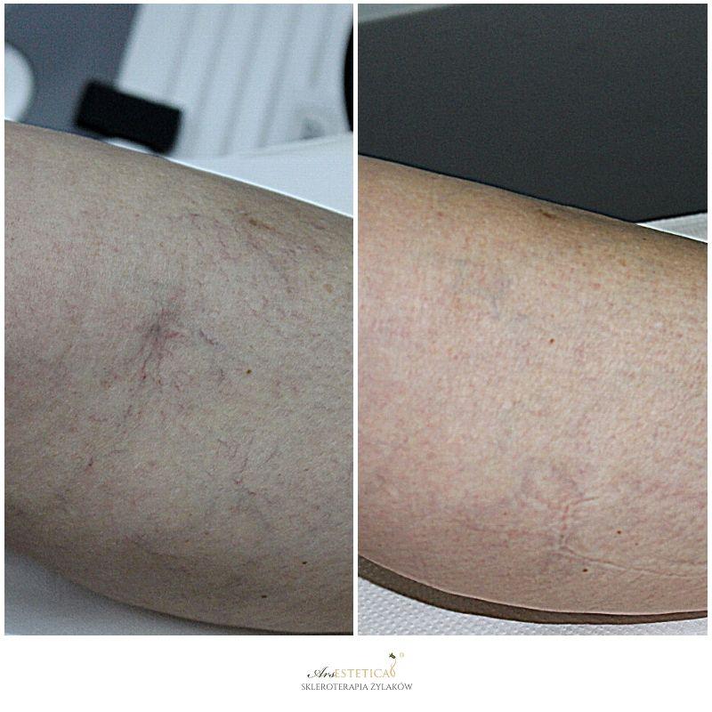 skleroterapia zdjęcia przed i po 3