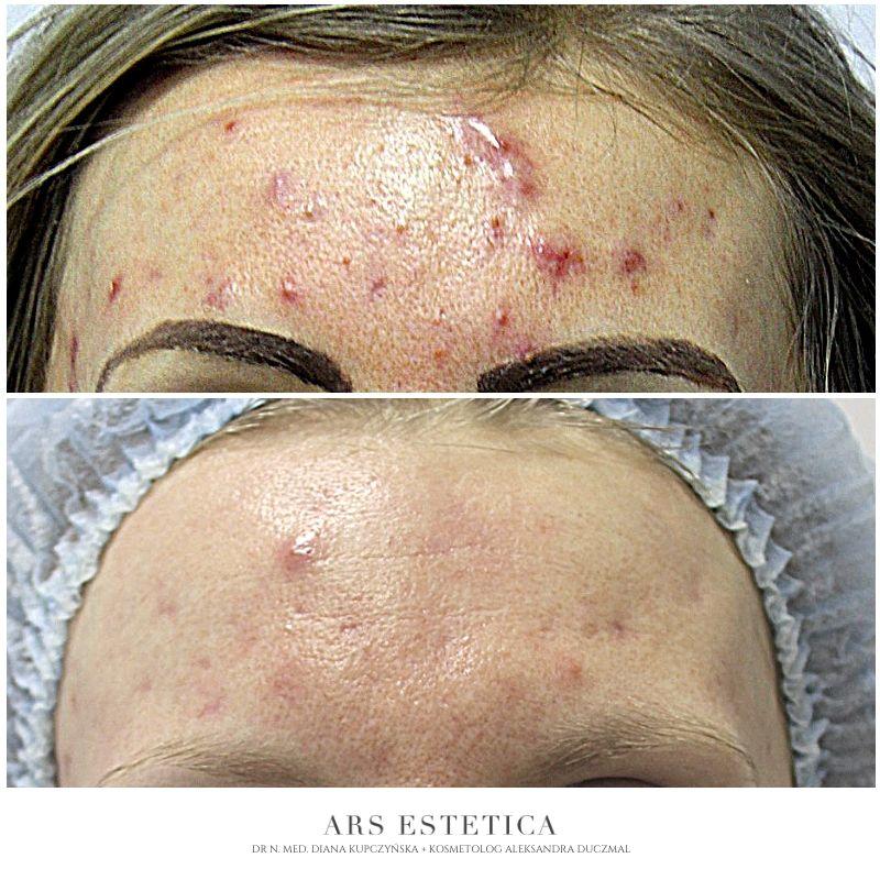 trądzik leczenie zdjęcia przed i po 2