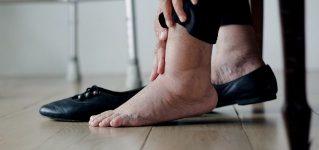 Obrzęki nóg  – dlaczego nogi puchną?