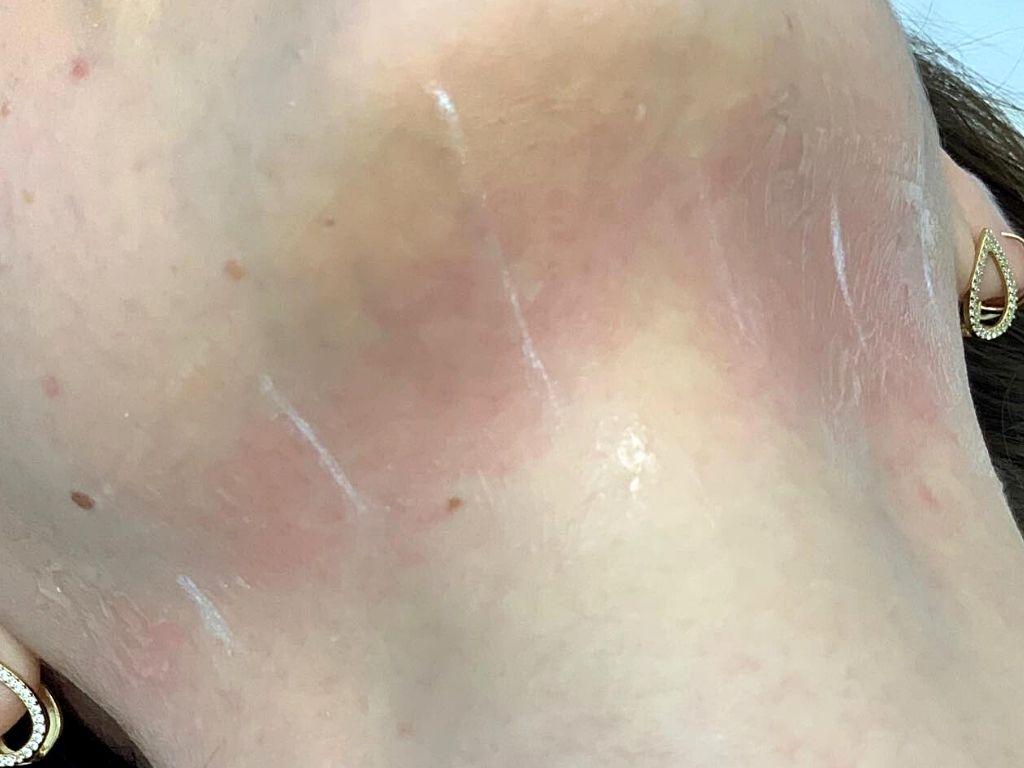 skóra po zabiegu HIFU