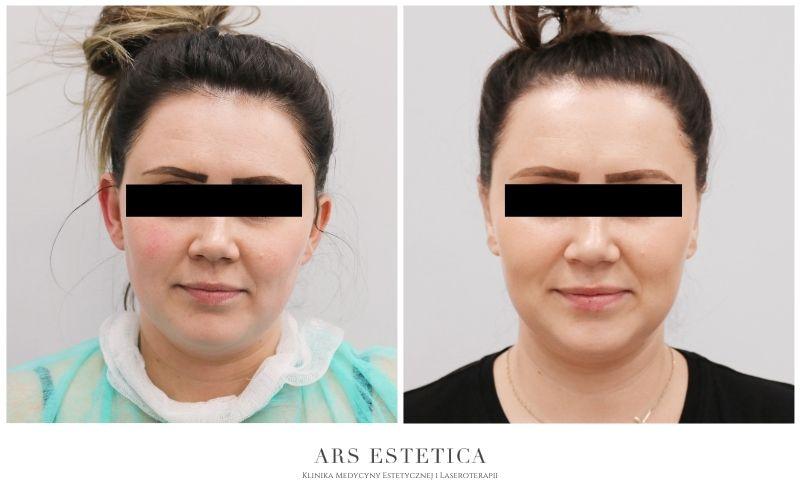 korekta odstających uszu przed i po