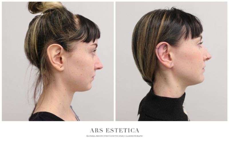 korekta małżowin usznych