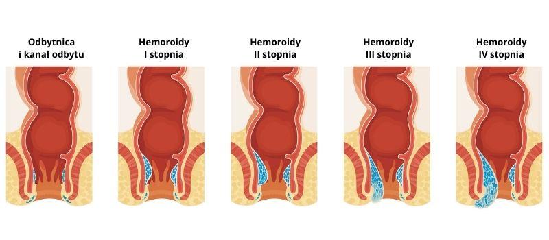 stopnie zaawansowania hemoroidów