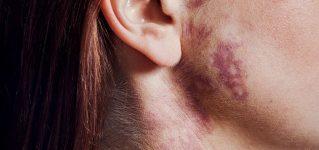 Naczyniak – przyczyny, rodzaje, metody leczenia