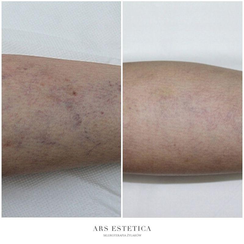 skleroterapia zdjęcia przed i po 2