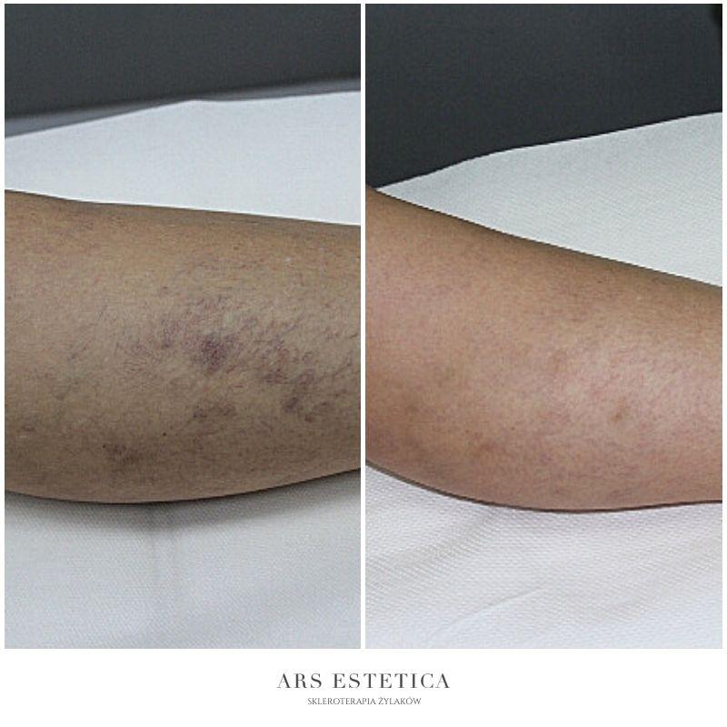 skleroterapia zdjęcia przed i po 4