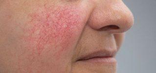 Rumień na twarzy – przyczyny, pielęgnacja i polecane zabiegi