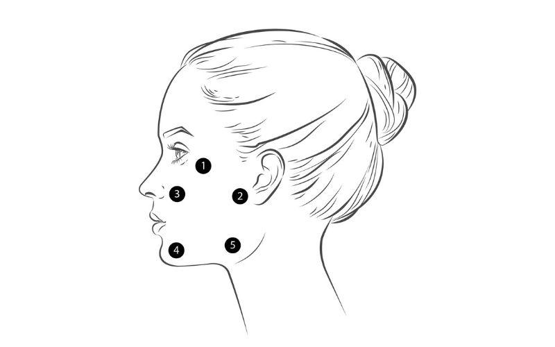 punkty na twarzy profhilo