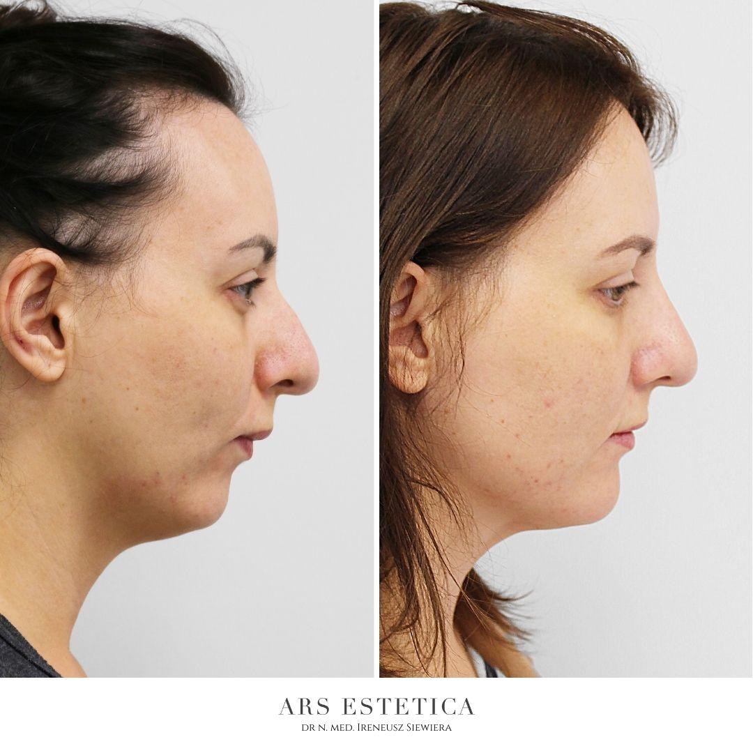 korekta nosa zdjęcia przed i po