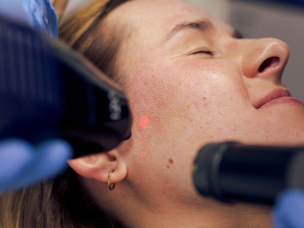 laser frakcyjny co2 na twarz