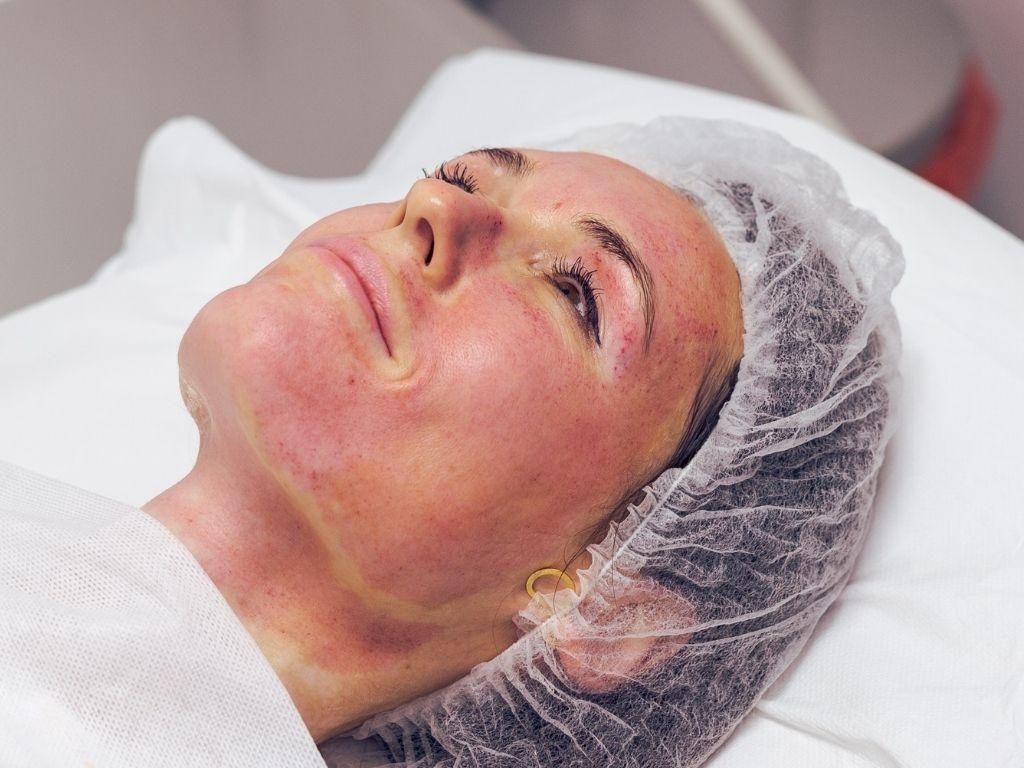 skóra po dermapenie