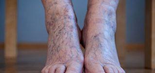 Żylaki na stopach – objawy, przyczyny, leczenie