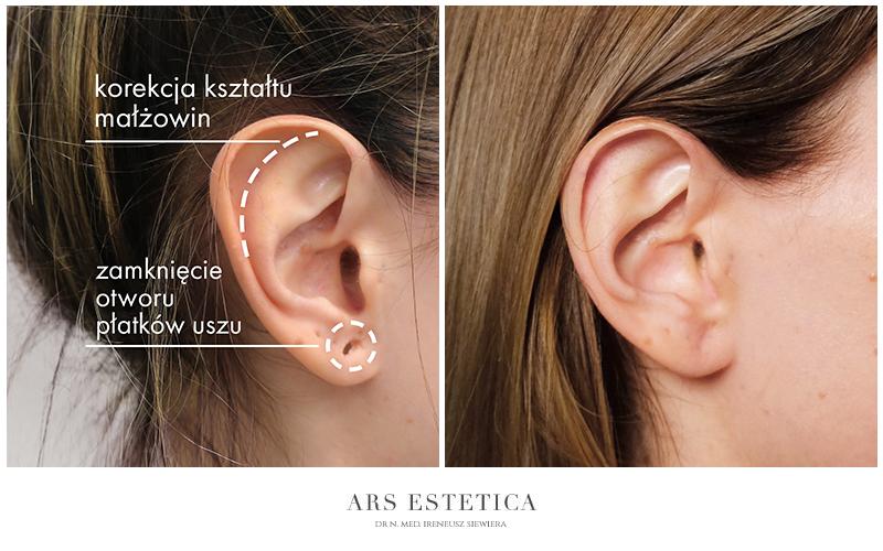 korekta kształtu małżowin usznych