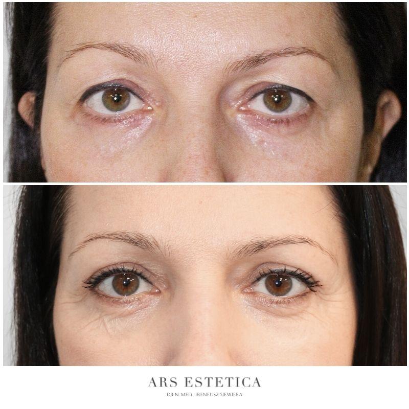 operacja powiek przed i po