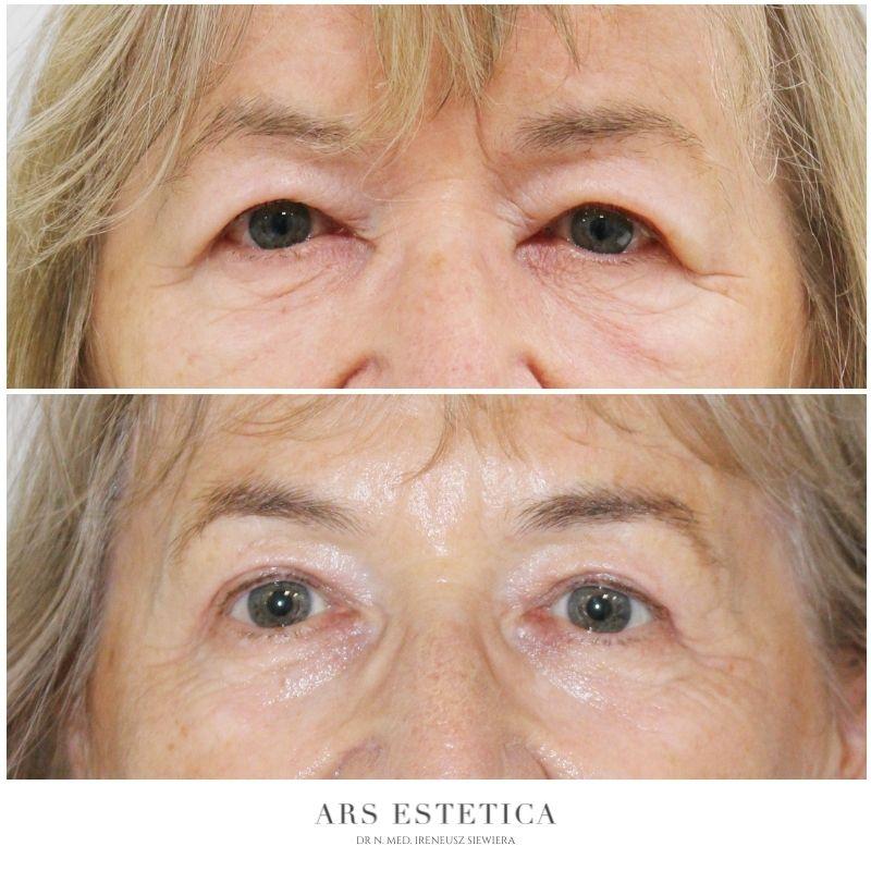 plastyka chirurgiczna powiek przed i po